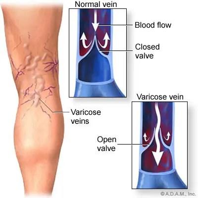 hogyan lehet kezelni egy térdízület ligamentum-könnyét