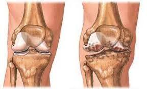 Aktív fájdalomcsillapítás: térdfájdalom csökkentés