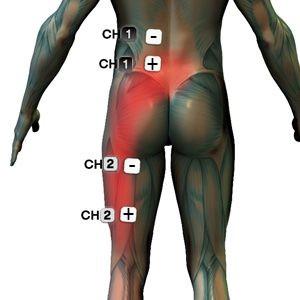 isiás gyulladás hialuron gél térdízület artrózisához