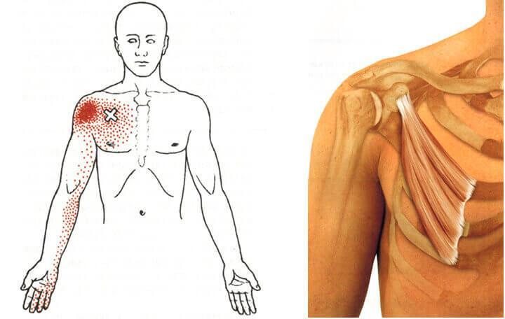 izom-csontrendszeri betegségek és kötőszöveti kezelés)