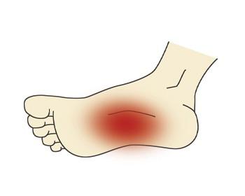 a boka csontritkulása forgás közben fájdalom a vállízületben