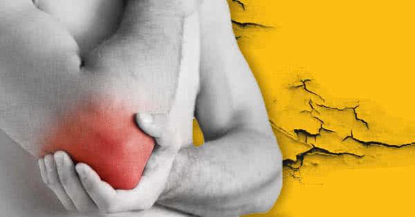 könyökízületi kenőcs epicondylitisének kezelése