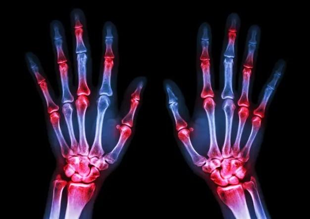 közös vizsgálat rheumatoid arthritis esetén)