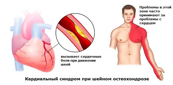 készítmények gerinc osteokondrozisához