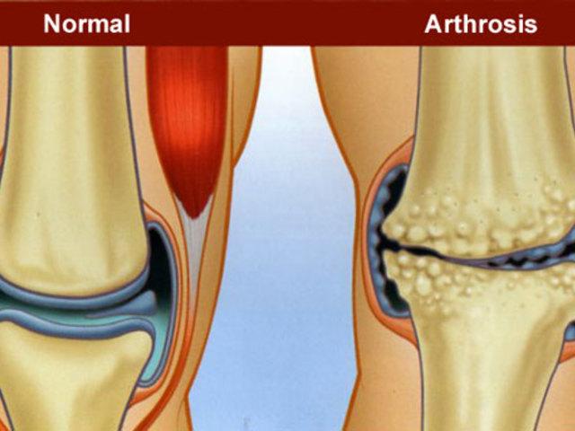 kurzus az artrózis kezelésében