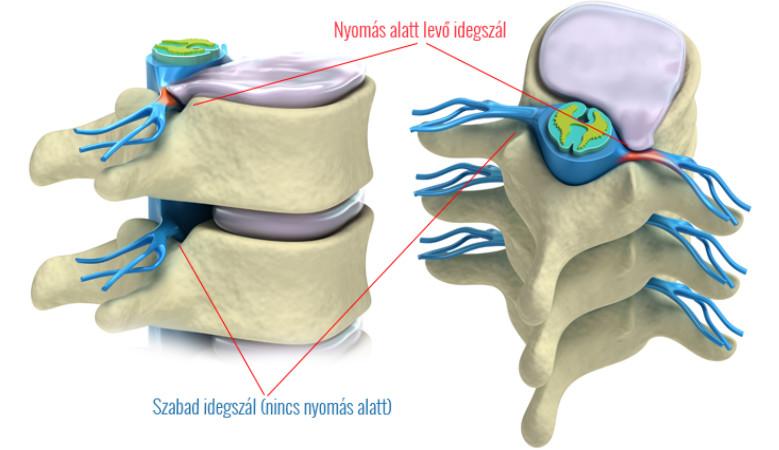 lábfájdalom a bal térdízületben)
