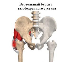 éles fájdalmak a bal csípőízületben
