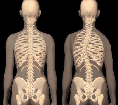 Háti gerincfájdalom