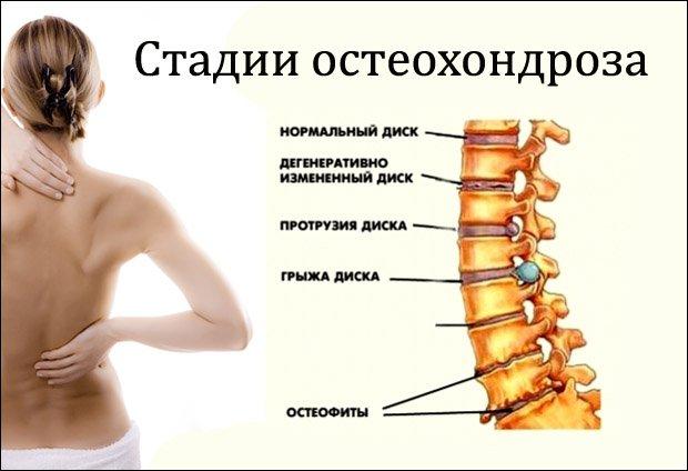 melyik kenőcsöt jobb használni méhnyakcsonti osteochondrozishoz)