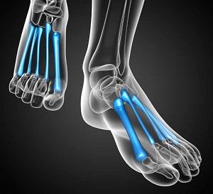 metatarsalis láb ízületi gyulladás)