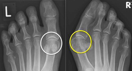 fibro-hasított alakú hamis ízületek kezelése végtagok rövidítése nélkül
