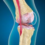milyen tünetek vannak a csípőbetegségnek