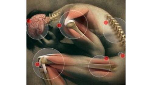minél jobban kezeli az ízületi gyulladást hogyan lehet megszabadulni a fájó ízületi fájdalmaktól