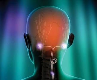 nyaki ízületek gyulladása és fejfájás