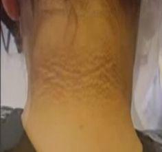olaj-doloron ízületi fájdalmak kezelésére