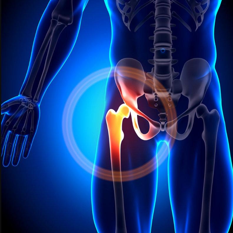 artritisz 3. fokú térdkezelés