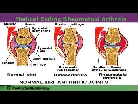 az artrózis kezelése a pitypanggyökérrel