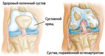 fájdalomcsillapítók a lábak ízületeiben