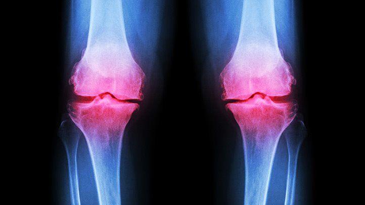 a csípőfájdalom kezelés megkezdése