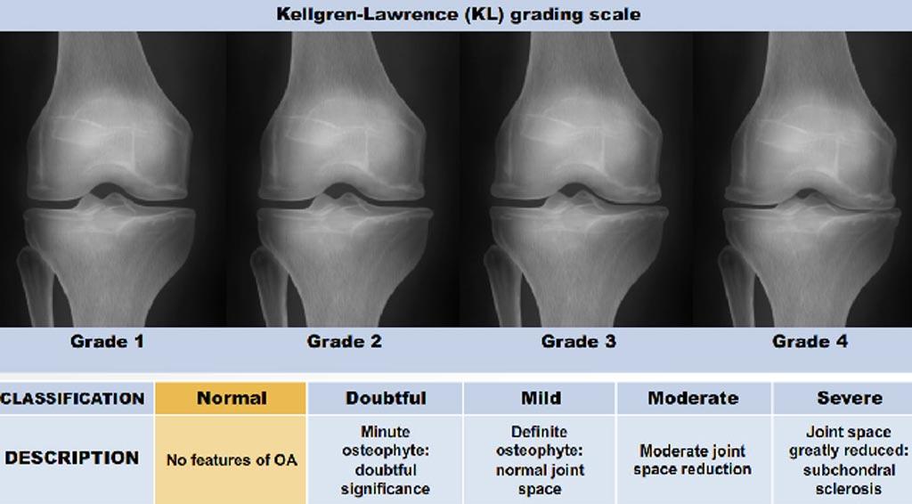 SPECT-CT a teljes térdízületi műtét navigált és nem navigált teljes térdműtétében