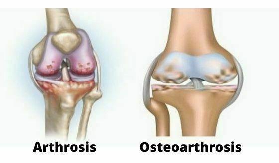 csípőízület csontritkulása mi ez
