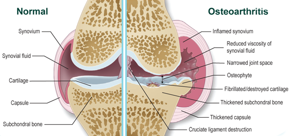 osteoarthrosis ízületi kezelés