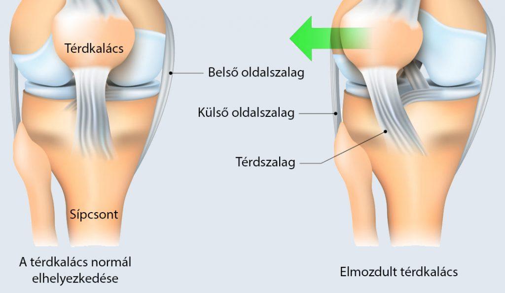 patello-femorális ízületek ízületi gyulladása)