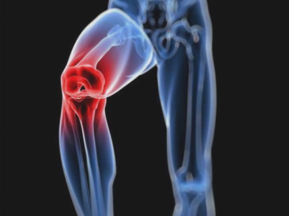 milyen gyógynövényeket inni térd artrózisával