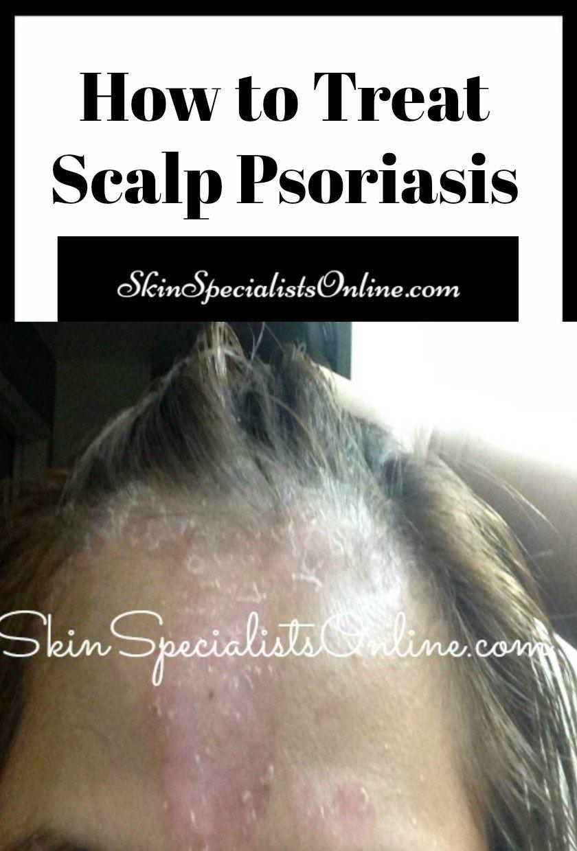 psoriasis arthrosis kezelése)
