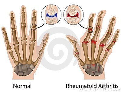 rheumatoid arthritis a kéz ízületei