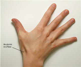 scaphoid fracture tests)