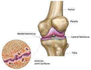 súlyosbodás artrózisos kezeléssel folyadék a térdízület homeopátia kezelésében