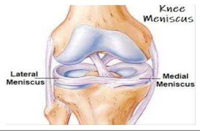 hogyan kell a diprospan-t az ízületi fájdalmakhoz felvenni fájdalom a térd hemarthrosisával