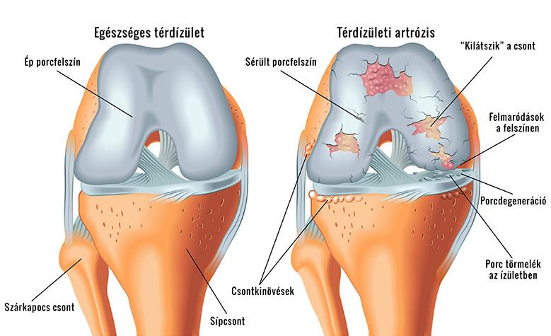 térdízület-fájdalom és ropogás