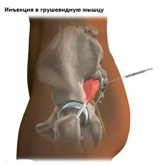 duzzadt izom a lábon fájdalommal köszvény első tünetei