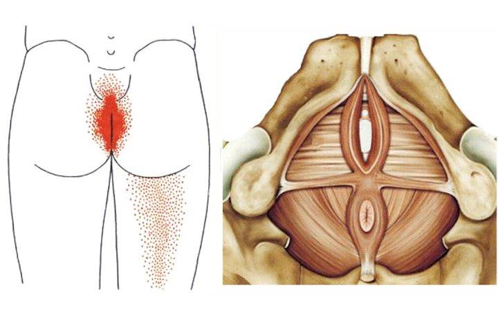 térdízület paroxysmalis fájdalma
