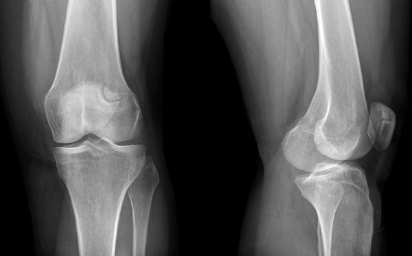 térdízületek deformációja csípőideg-megsértési tünetek és kezelés