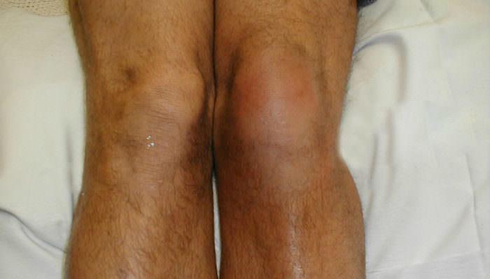 tuberkulózisos coxita a kézízületek fájdalmának kezelése