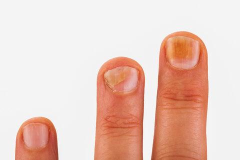 ujjgyulladás és ekcéma