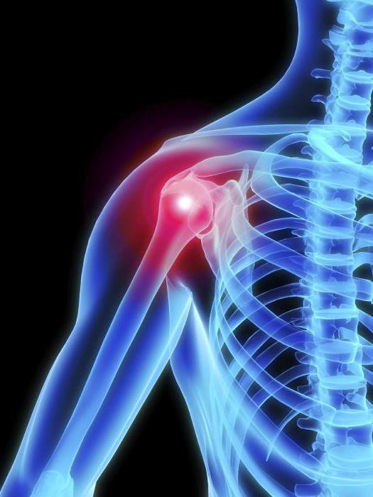 vállízület osteoarthritis tünetei és kezelése)