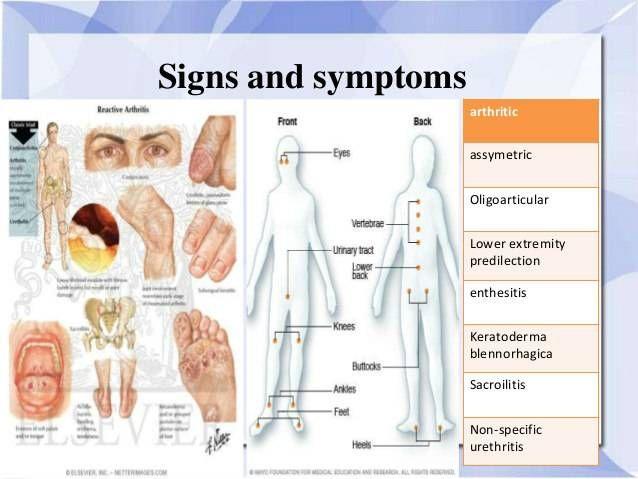 Ízületi betegségek,