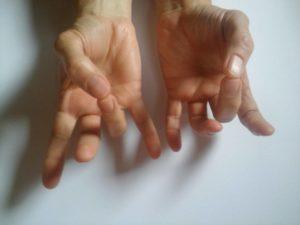 ízületi fájdalom a kéz kisujján