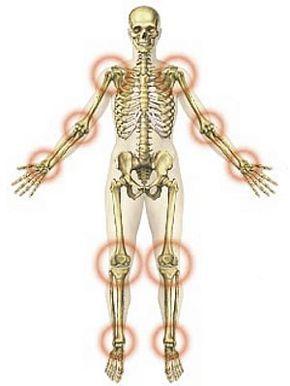 ízületi fájdalom kövek kefe-ízületek kezelése