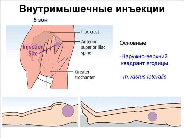 ízületi gélinjekciók