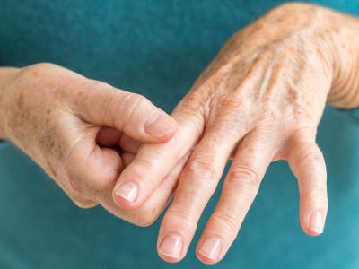 ízületi gyulladás a kéz ujjaival)