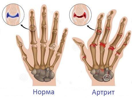 ízületi gyulladás és gyapjú kezelés)