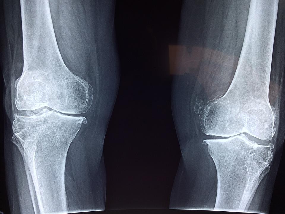 Térdfájdalom okai és kezelése Térdízület megrontja a kezelését