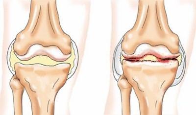Artrózis a láb második fokának A térdízület első fokú deformáló artrózisa
