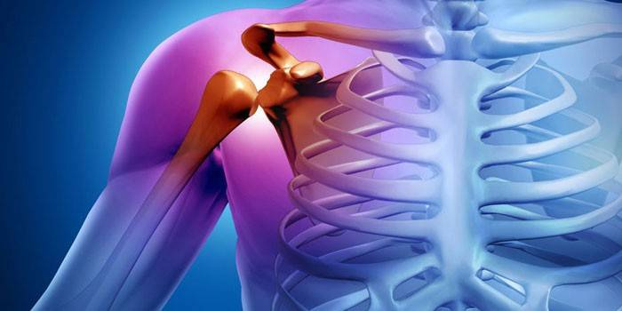 Milgamma a vállízület ízületi gyulladásáért - Vállfájdalom tünetei és kezelése - HáziPatika