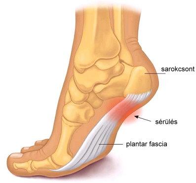fáj a láb sarkán lévő ízület)